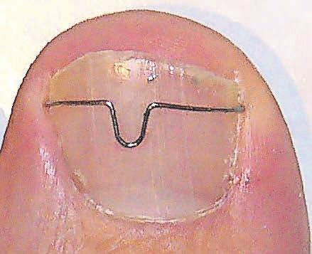 Die Praxis für Podologie Kerstin Behrens hat sich auf Behandlungen mit der Orthonyxiespange spezialisiert und verhindert damit das Einwachsen des Nagels.